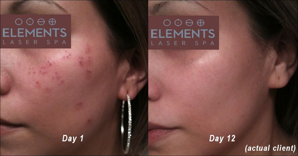 Before and after laser sunspot treatment showing complete removal twelve days after treatment.